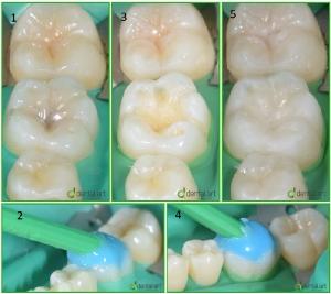 odontologie_14