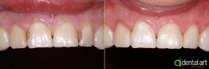 odontologie_3