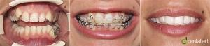 ortodontie_14