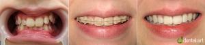 ortodontie_15