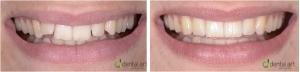 ortodontie 19_1