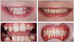 ortodontie_1