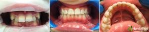 ortodontie_2