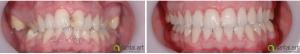 ortodontie_31_1