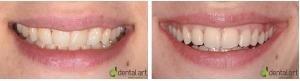 ortodontie_33_1