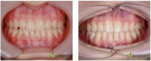 ortodontie_35_1