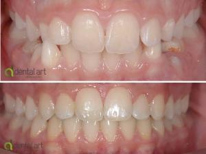 ortodontie_40_1