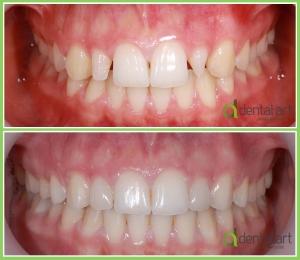 ortodontie_40_2
