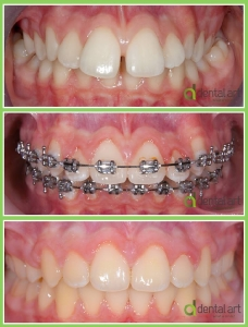 ortodontie_40_3