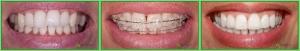 ortodontie_51_1