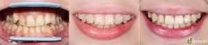 ortodontie_8