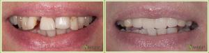 parodontologie_2